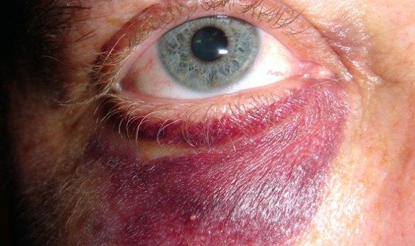 how-to-heal-a-black-eye